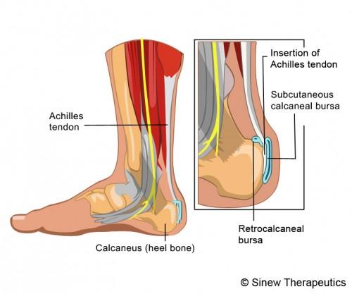 Achilles Tendonitis Information, Treatment, Rehabilitation - Sinew ...