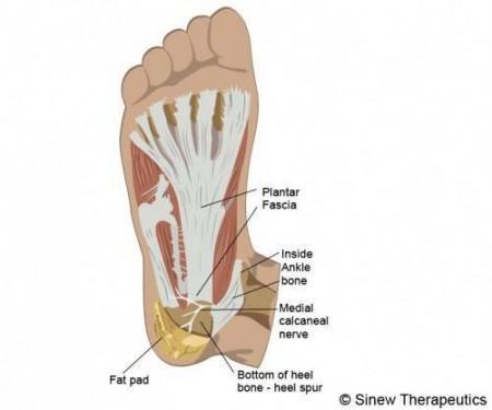 Heel Pain Information Sinew Therapeutics