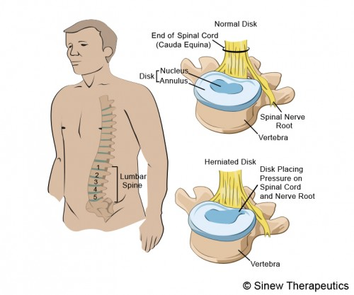 Herniated Disc Information Sinew Therapeutics