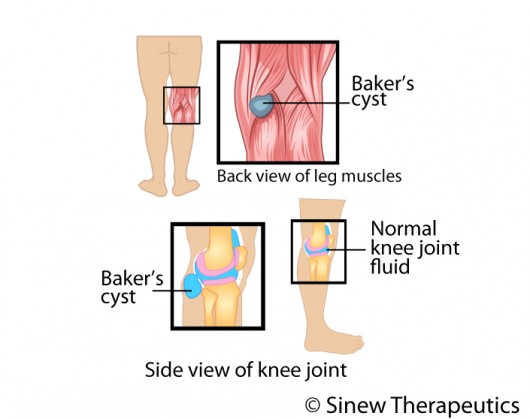 Popliteal Cyst Bakers Cyst Information - Sinew Therapeutics
