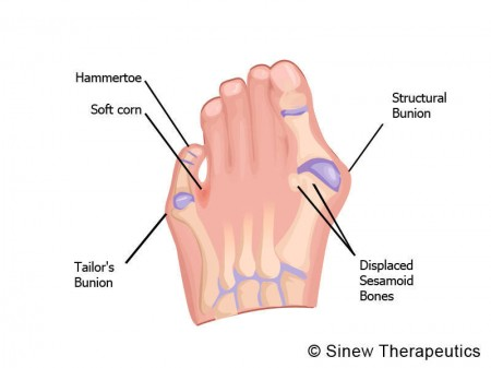 foot bursitis information - sinew therapeutics, Human Body