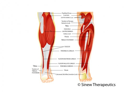Shin Splints Periostitis Information Sinew Therapeutics