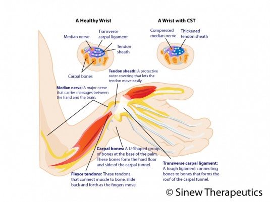 Tendinitis of the Wrist Information - Sinew Therapeutics
