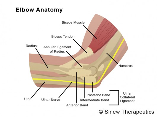 Tennis Elbow Information Sinew Therapeutics