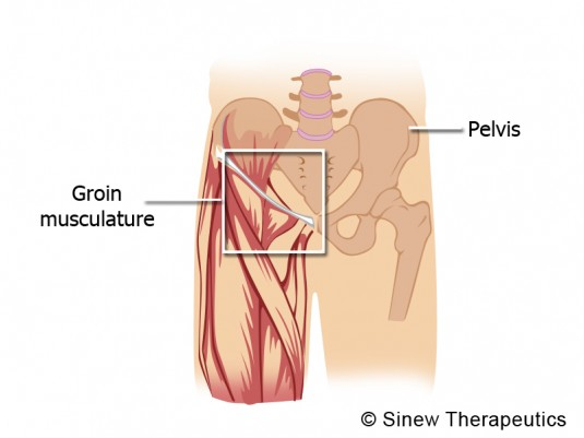 inflammation of groin adductor-muscles information - sinew, Human Body