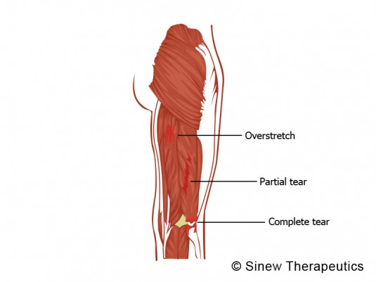 Hamstring Pulled Torn Information - Sinew Therapeutics