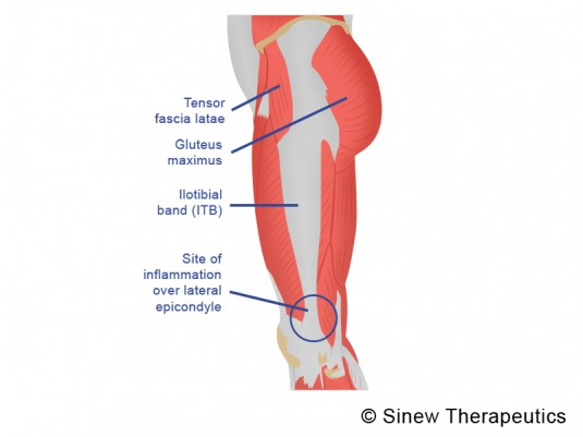 iliotibial band syndrome information - sinew therapeutics, Cephalic Vein