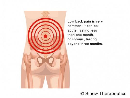 Lower Back Pain Strain Information - Sinew Therapeutics