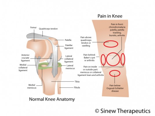 Knee bursitis information sinew therapeutics knee bursitis information ccuart Image collections