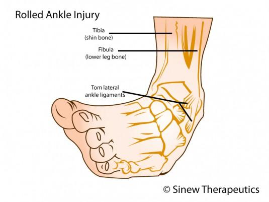 Ankle Sprain Information - Sinew Therapeutics