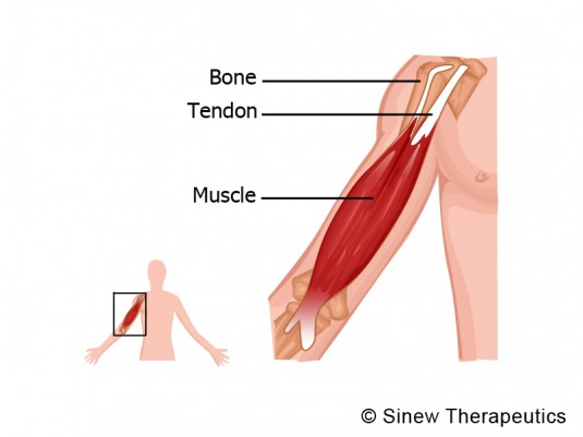 7 Elbow Acute injuries that is preventing you from doing the ...