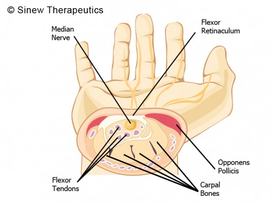 Carpal Tunnel Syndrome Information - Sinew Therapeutics